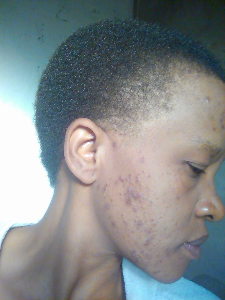 Thandiwe - before